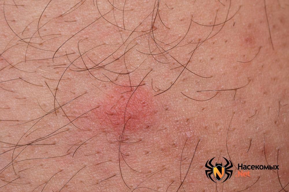 Последствия укусов блох на теле