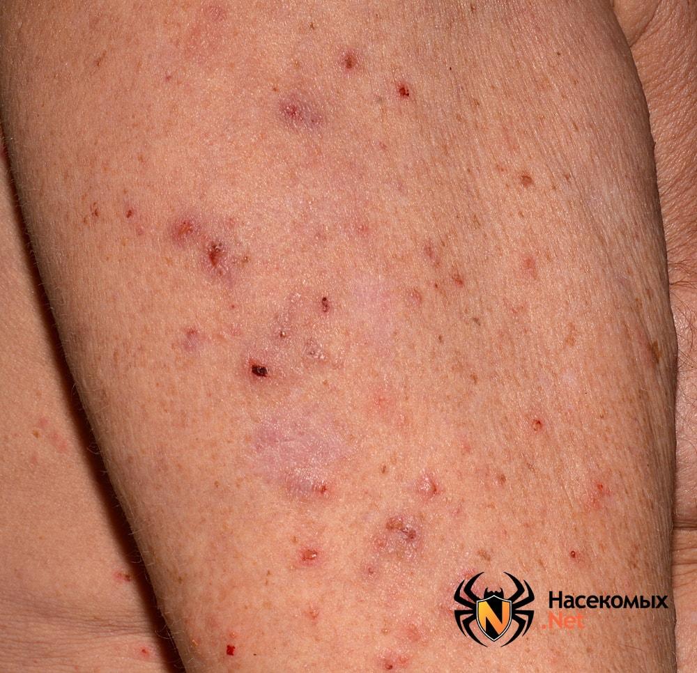 Как выглядят укусы чесоточного клеща на коже человека