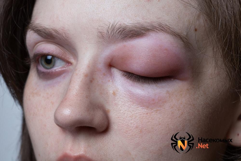 Отек глаза после укуса осы