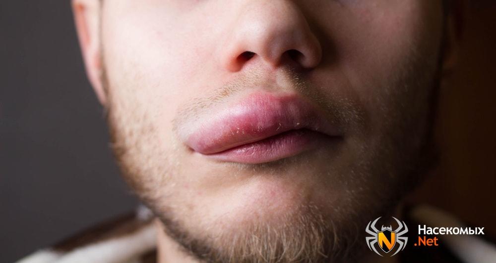 Отек губы после укуса осы
