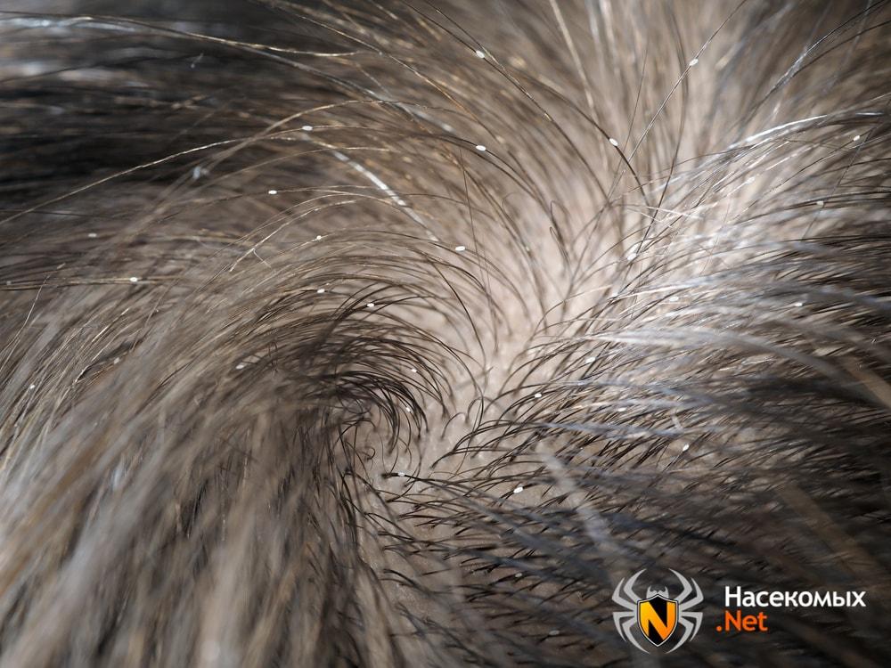 Вши на волосах на голове